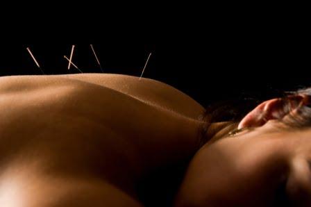 IVF Acupuncture